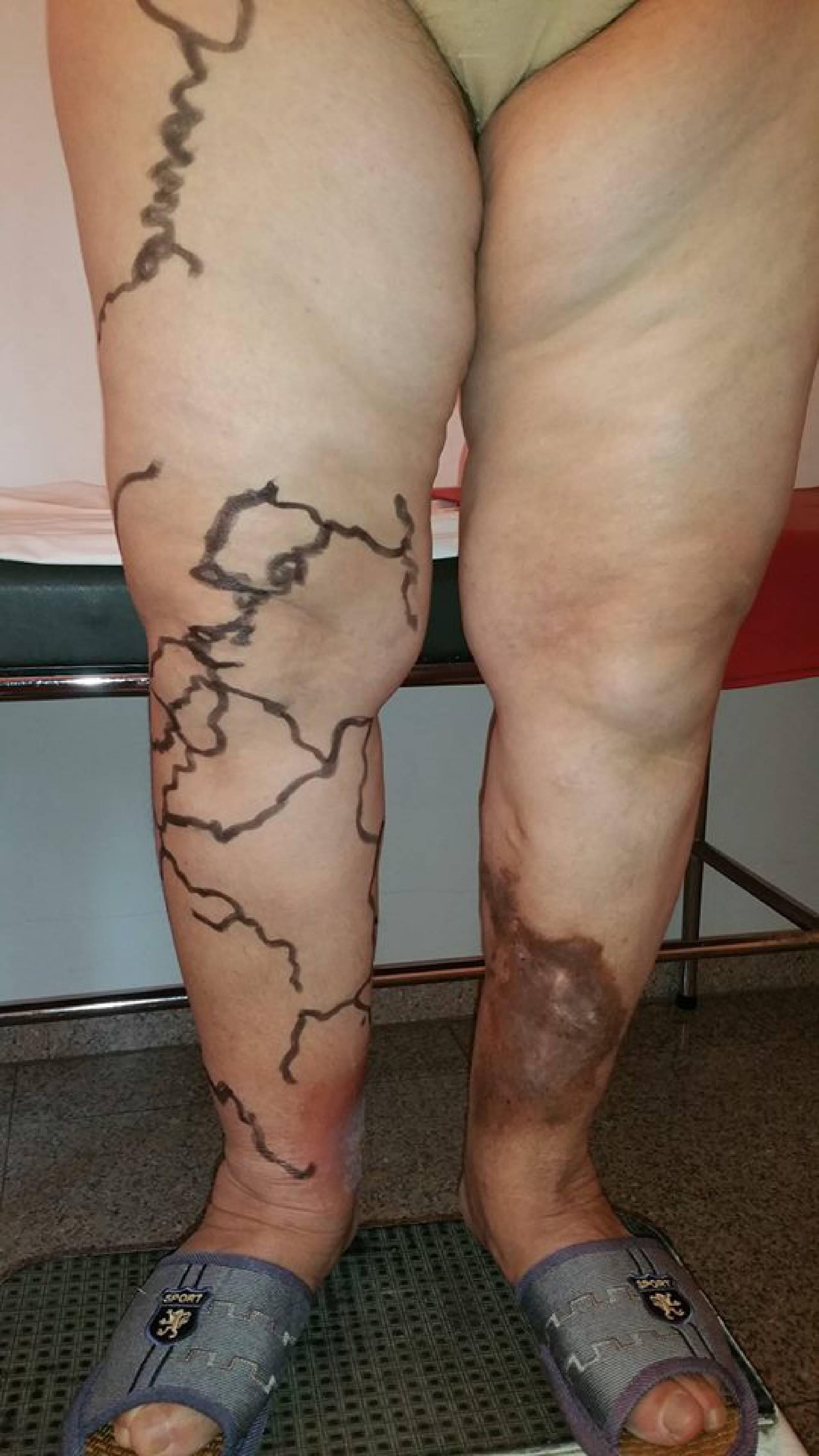 chirurgie laser varicoză pe picioare preț