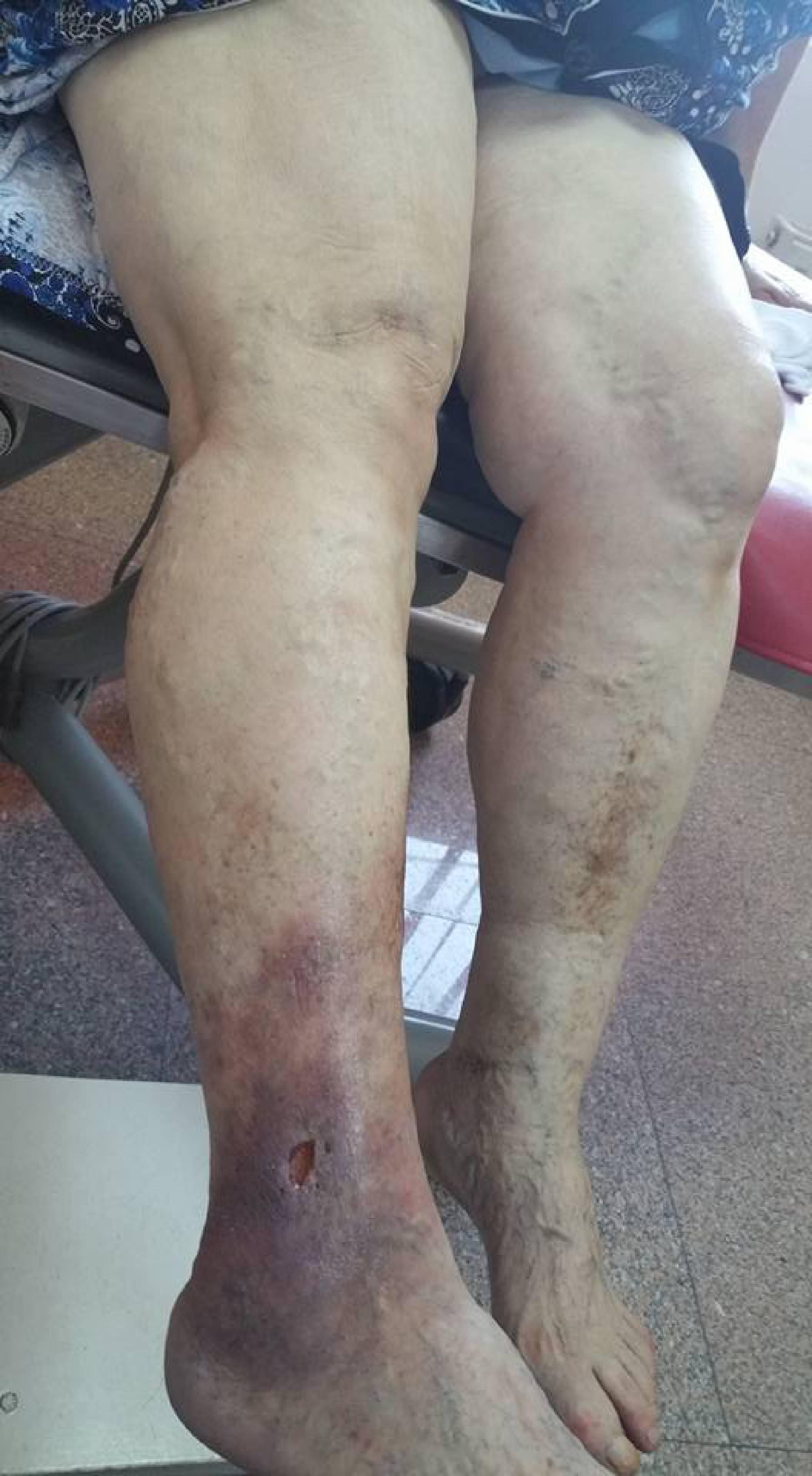 rls fără durere varice trombozate