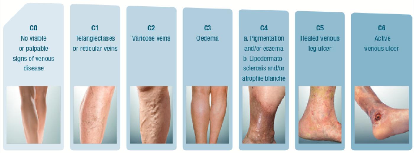 insuficienta venoasa picioare tratament